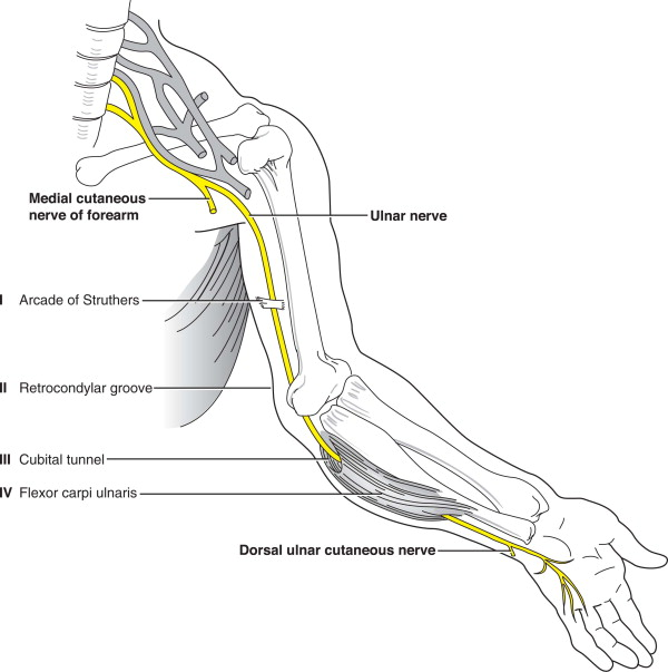 ulnar nerve diagram craftsman lt2000 solenoid wiring neuropathy an overview sciencedirect topics sign in to download full size image