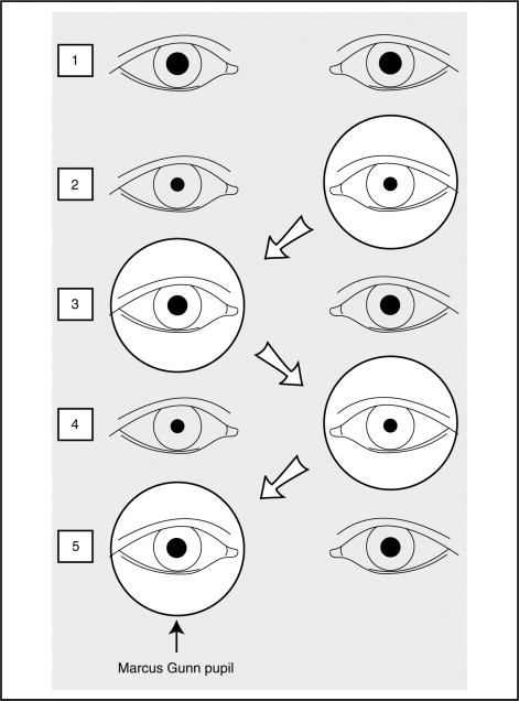 Image result for relative afferent pupillary defect
