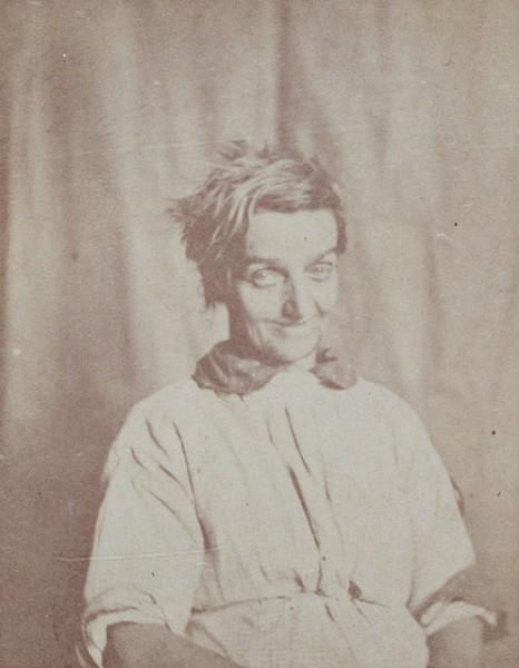 bir-akil-hastanesinden-teshis-portreleri-10