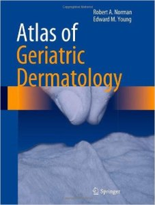 Atlas of Geriatric Dermatology PDF