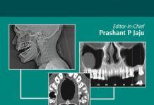 Dental CT Third Eye