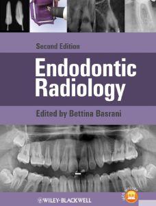 Endodontic Radiology 2nd Edition PDF