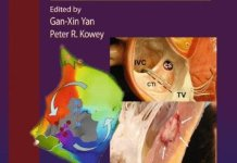 Management of Cardiac Arrhythmias 2nd Edition