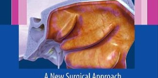 Modified Inferior Turbinoplasty PDF
