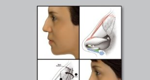 Rhinoplasty Cases and Techniques PDF