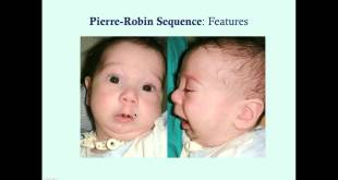 Pierre Robin Sequence