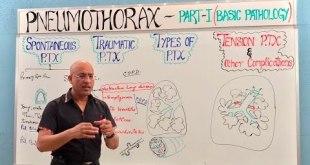Pneumothorax - Spontaneous, Tension & Traumatic