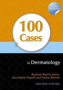 100 Cases in Dermatology PDF