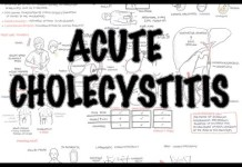 Acute Cholecystitis - Overview