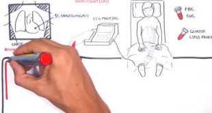 Acute Coronary Syndrome DETAILED Overview (MI, STEMI, NSTEMI)