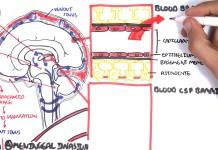 (Bacterial) Meningitis Pathophysiology