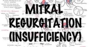Mitral Reguritation (insufficiency) - Overview