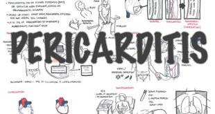Pericarditis - Overview