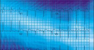 ECGs for the Emergency Physician 1 PDF