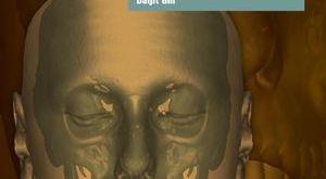 Orthodontics at a Glance PDF