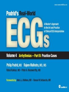 Podrid's Real-World ECGs Volume 4 Part B PDF
