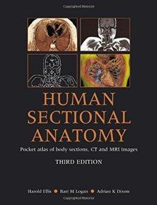 Human Sectional Anatomy 3rd Edition PDF