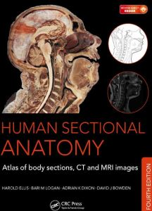 Human Sectional Anatomy 4th Edition PDF