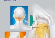 Atlas of Injection Therapy in Pain Management PDF
