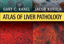 Atlas of Liver Pathology 3rd Edition PDF