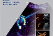Interventional Ultrasound - A Practical Guide and Atlas PDF