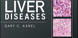 Pathology of Liver Diseases PDF