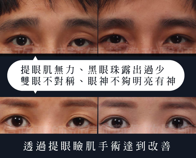 眼瞼肌無力解決方法 - 大小眼 愛睏眼 提眼瞼肌手術案例分享 - 璞美整形外科