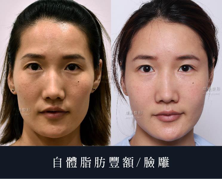 內視鏡豐額 - 額頭低陷短窄困擾,量身打造美形豐額- 璞美整形外科