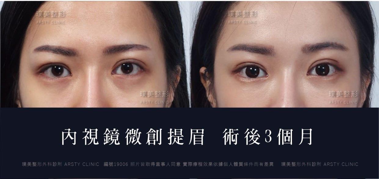 改善眉眼下垂,雙眼皮窄化 - 視覺年齡年輕10歲如何做到? - 璞美整形外科
