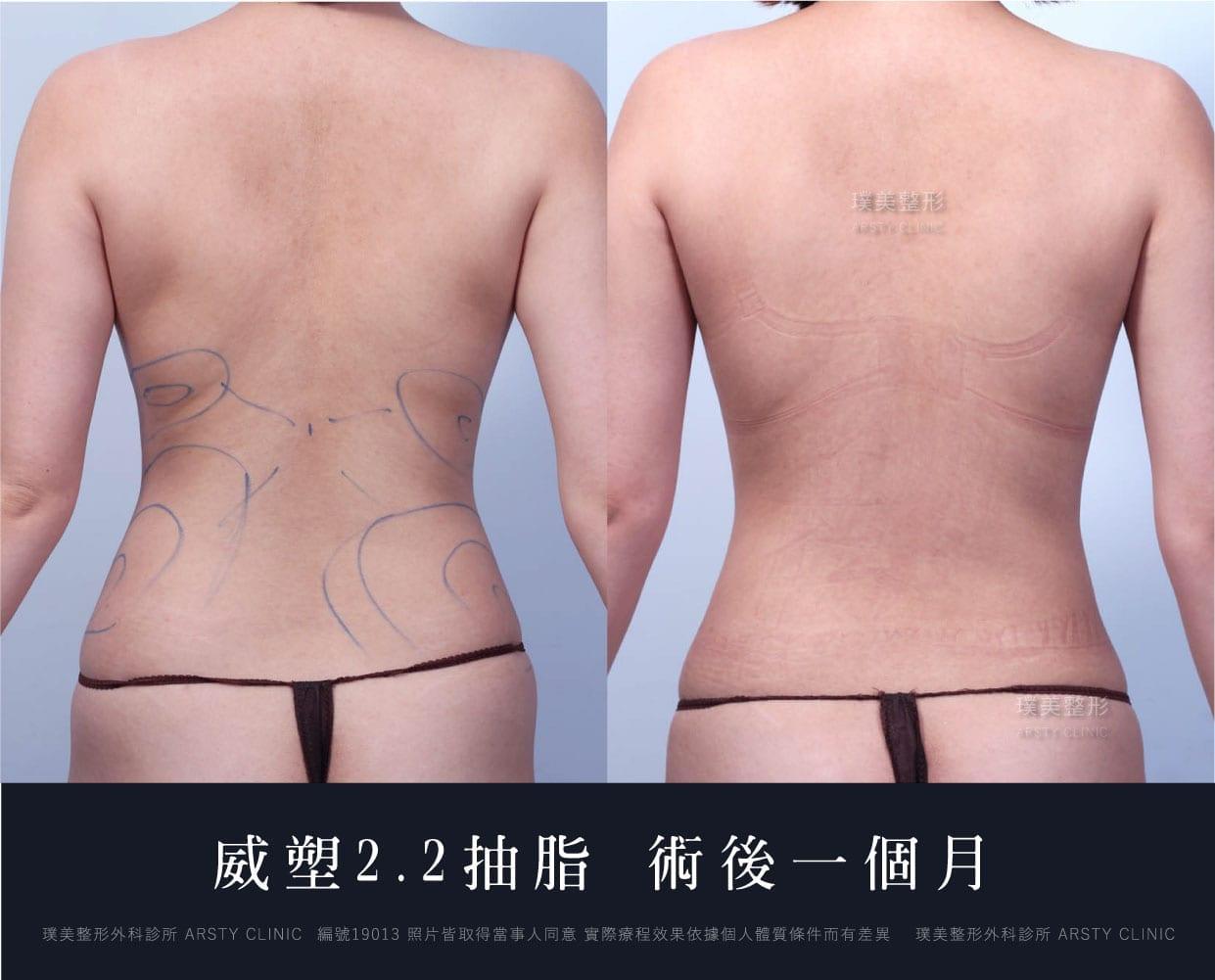威塑抽脂2.2 - 資深整外醫師 美感精雕少女腰 - 璞美整形外科醫美診所