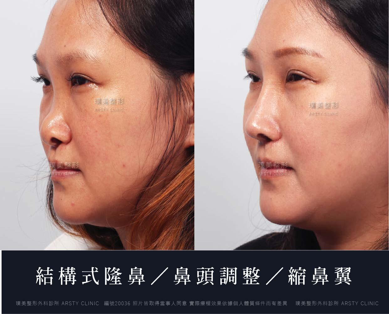 縮鼻翼手術 - 改善鼻翼弧度 隱痕自然 - 璞美整形外科