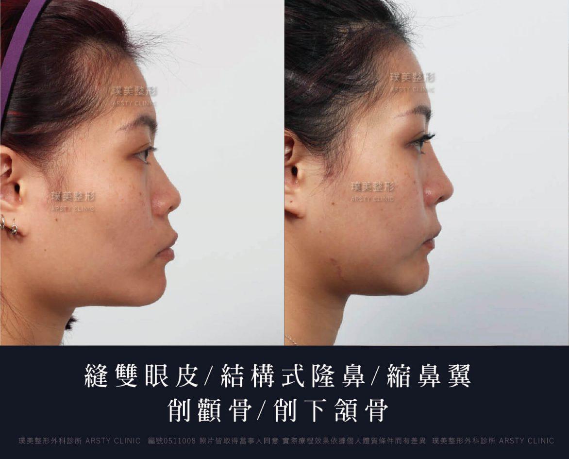 削骨/顴骨內推/縫雙眼皮/結構式隆鼻/縮鼻翼|璞美整形外科