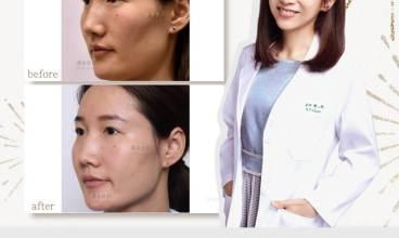 璞美陳心瑜醫師-自體脂肪/醫美臉部填補