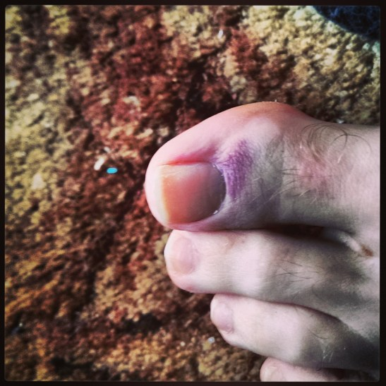 My toe