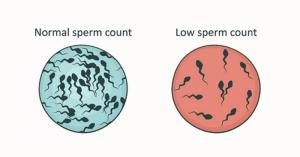 Azoospermia
