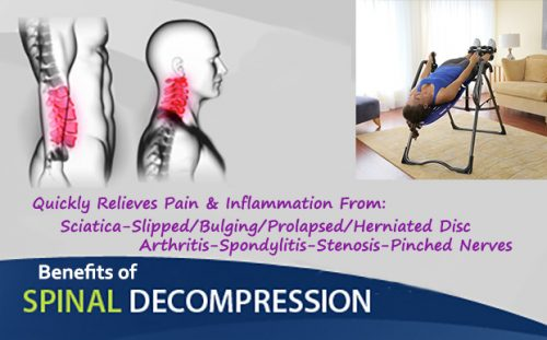 Treatment for Spinal Stenosis - Arthritis Treatment