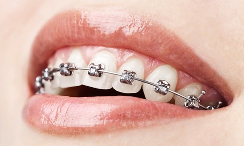 Caring for Teeth With Braces and Retainers