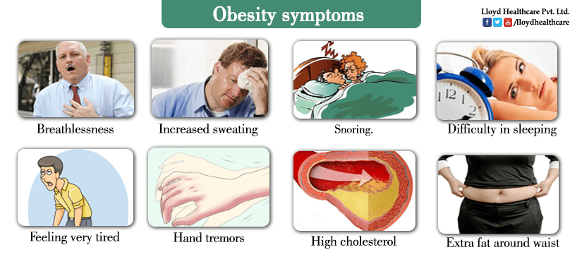 Obesity - symptoms, causes and treatment