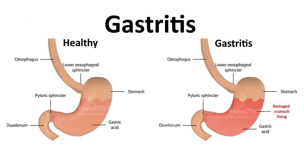 Gastritis - Symptoms, causes and treatment - Article1000 com