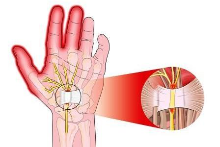 Carpal tunnel syndrome - symptoms, causes and treatment