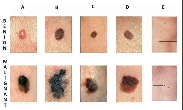 Skin Cancer - symptoms, causes and treatment