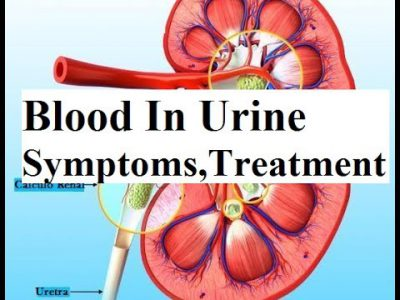Blood in Urine Symptoms, Causes and Treatment