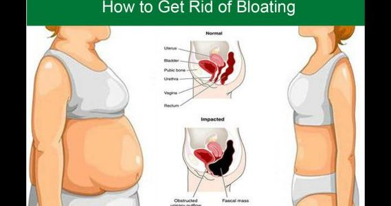 Bloating - Gas Problem - Causes and treatment