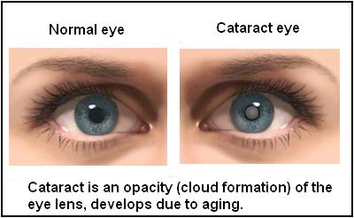 Cataracts - causes and treatment