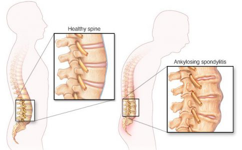 Ankylosing spondylitis - symptoms, causes and treatment