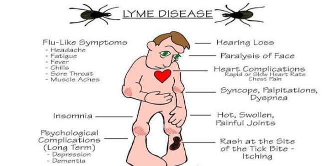 Image result for lyme diseases