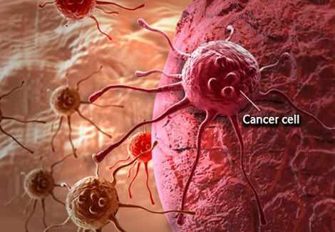 Signs and Symptoms of Cancer