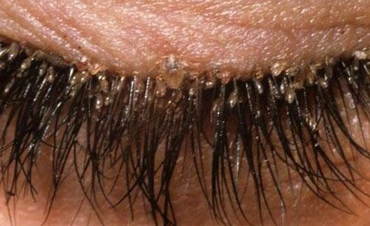 How to Get Rid of Eyelash Mites
