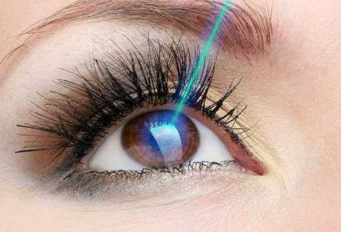 Best Age to Get Lasik