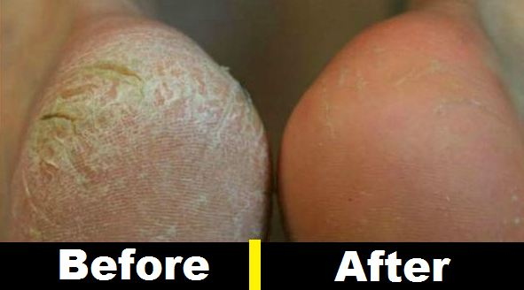 How to Get Rid of Calluses on Feet with Listerine Easily